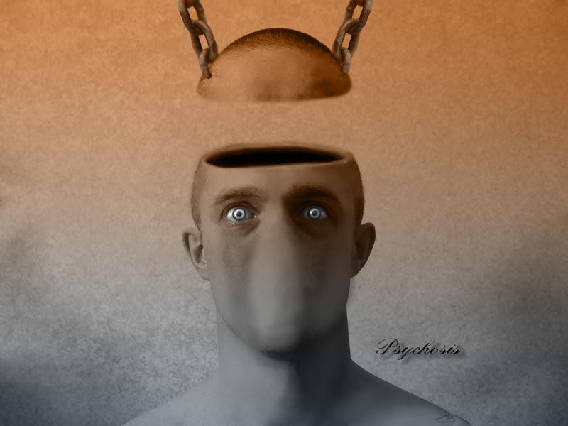 Ar pagydoma psichoze