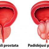 lėtinis prostatitas, bloginantis erekciją pirmą kartą vyrui yra erekcija