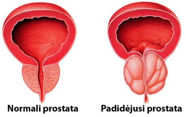 sunki lėtinio prostatito erekcija