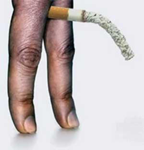Jis rūko - jis taps impotentu - jis manęs nedomina